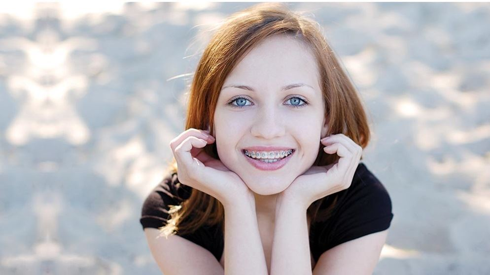 essay on getting braces Essay contest: my scariest experience essay contest i would get it tightened, much like tightening your braces this essay isn't to show teens that getting.
