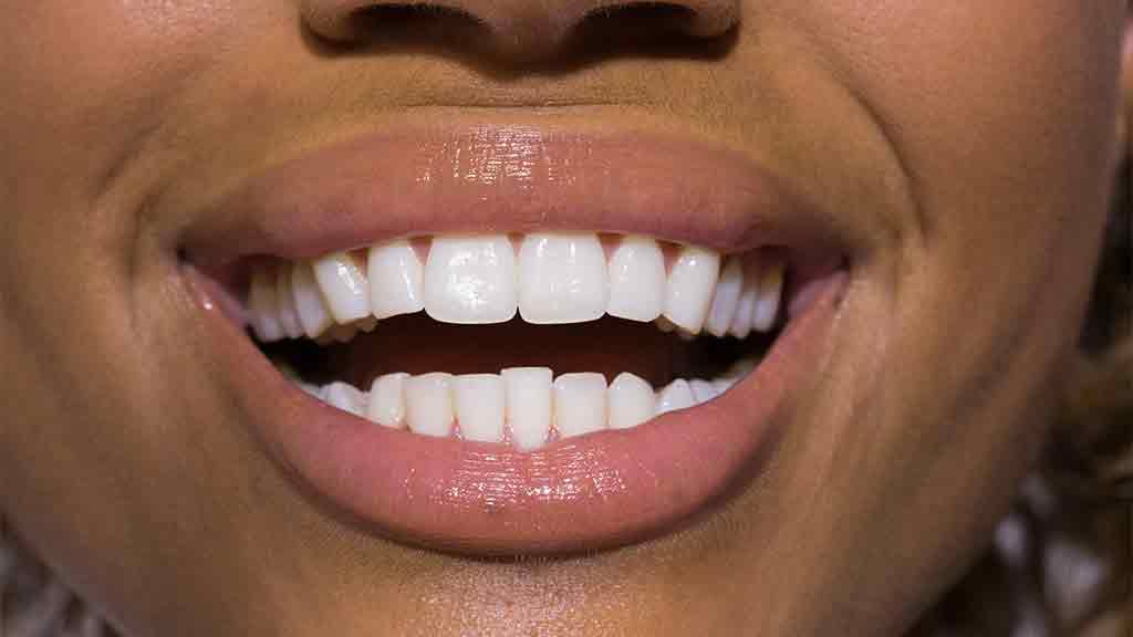 Teeth Whitening Treatments Dentists Dental Care And Products Choice