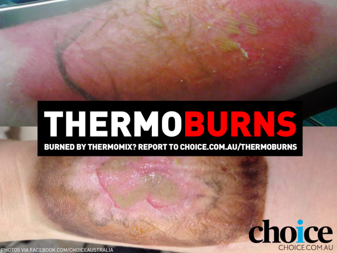 Thermoburns campaign