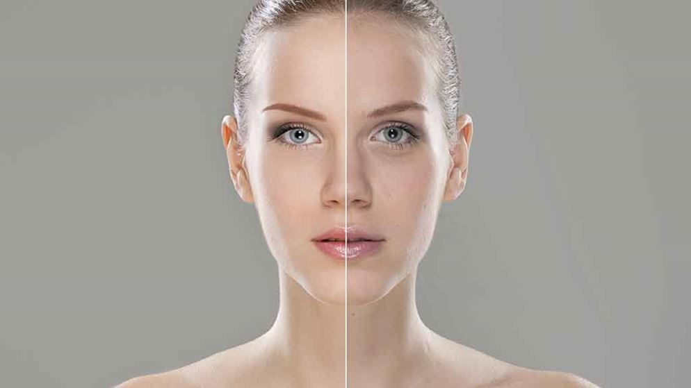 Image result for The Most Common Anti-Wrinkle Injectables Questions Answered!